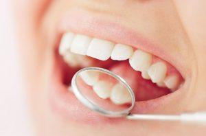 Help Avoid Gum Disease with Clean & Scale