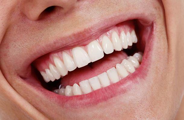 Preventative Dental