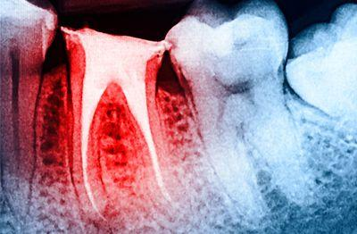 root canal dental work (aka endodontic treatment)