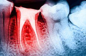 root canal dental work (aka endodontic treatment)